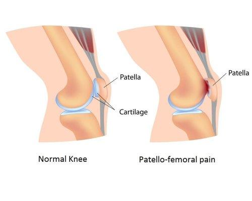 نشانه های سندرم پاتلوفمورال و درمان آن