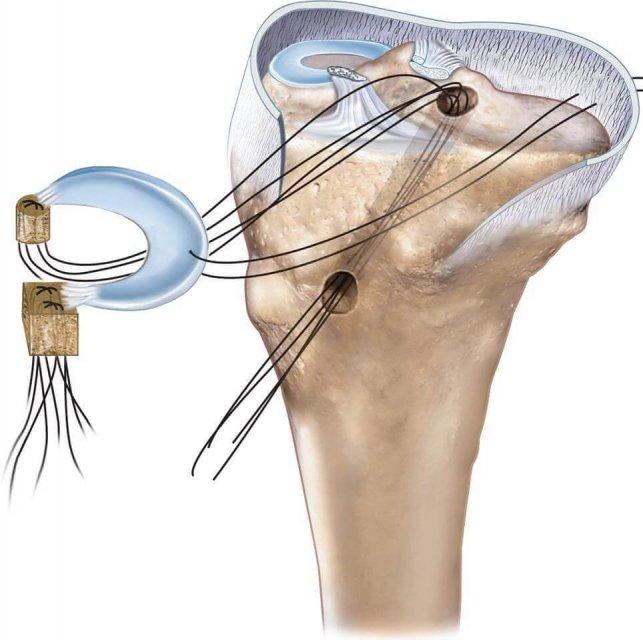 ترمیم ریشه منیسک (meniscus root repair )