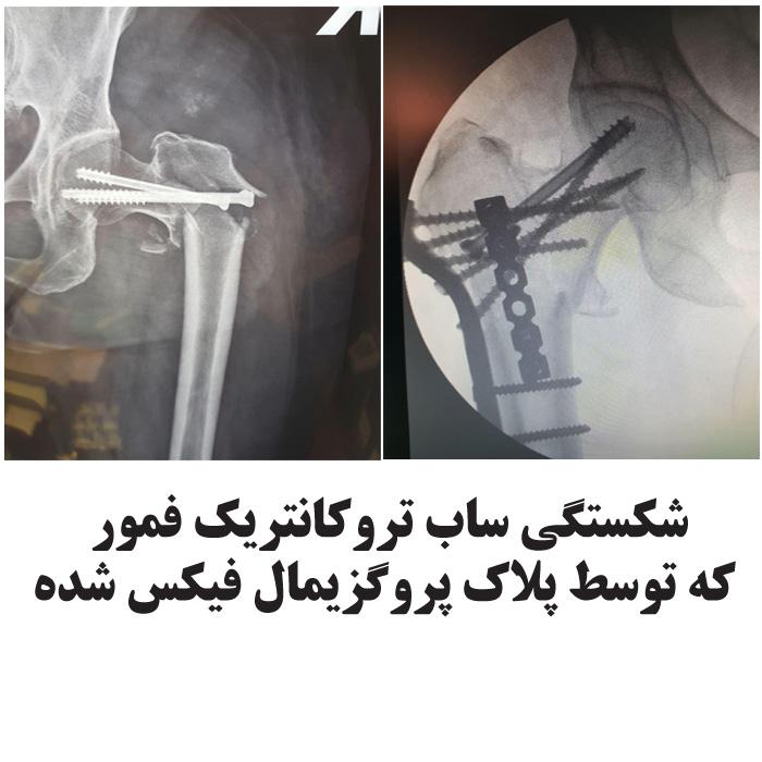 شکستگی ساب تروکانتریک فمور که توسط پلاک پروگزیمال فیکس شده