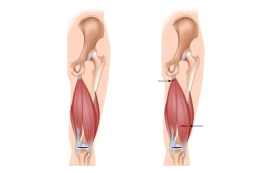 آسیب های عضلات همسترینگ ،علائم ، تشخیص و درمان