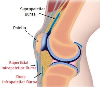 بورسیت تحت کشککی (Infrapatellar bursitis)