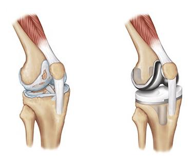 سوالات متداول-جراحی تعویض مفصل زانو
