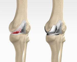 آرتروپلاستی یک طرفه مفصل زانو