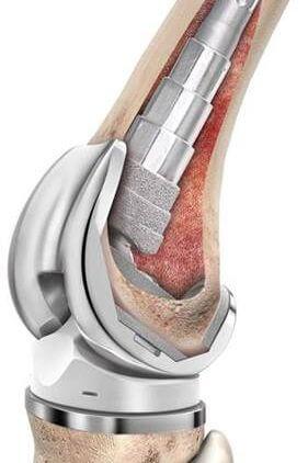 جراحی مجدد تعویض مفصل زانو